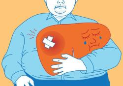"""WorldJGastroenterology: <font color=""""red"""">营养</font>状况和<font color=""""red"""">营养</font>支持在乙型肝炎病毒相关的<font color=""""red"""">慢性</font><font color=""""red"""">慢性</font>肝衰竭中的作用"""