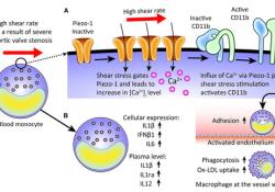 Circulation:新发现!经导管主动脉瓣植入术还具有抗炎作用
