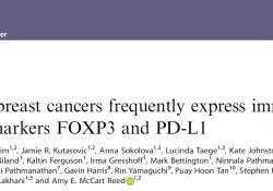 "Br J Cancer:FOXP3和PD-L1或可成为化生性乳腺癌的潜在治疗<font color=""red"">靶标</font>"