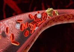 """ClinGastroenterologyH:肝硬化和<font color=""""red"""">急性</font>失代偿患者门静脉<font color=""""red"""">血栓</font>形成的患病率"""