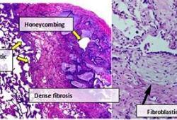 特发性肺纤维化的治疗突破!AT2R激动剂VP01或具强大作用