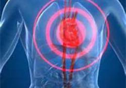 JAHA:食品不安全与心血管疾病和全因死亡相关