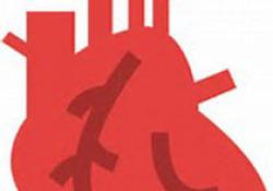 """JAHA:腰肌质量指数在非ST<font color=""""red"""">段</font>抬高型心肌梗死患者中的预后价值"""