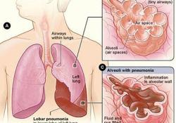 "雾化Ensifentrine治疗慢性阻塞性肺疾病(<font color=""red"">COPD</font>):即将开展III期临床试验"