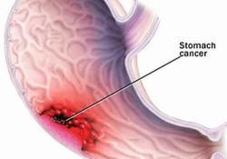 "Derazantinib治疗晚期<font color=""red"">胃癌</font>:即将开展I/II期研究"