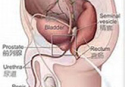脱细胞异体真皮(HADM)在阴茎增粗手术中的应用中国专家共识(2020版)