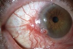 NEJM:结膜鳞状细胞癌-病例报道