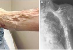 Lancet respirat med:托珠单抗治疗系统性硬化症的3期临床试验结果