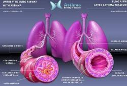ERS 2020:高剂量Enerzair Breezhaler可进一步减轻哮喘发作