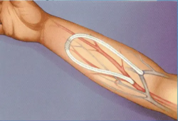 Am J Kidney Dis:两种外科动静脉内瘘术式比较:椭圆型经皮动静脉瘘VS外科动静脉瘘(Gracz术)