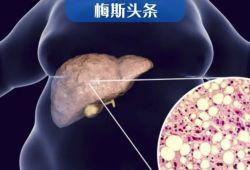 51年队列研究:轻度脂肪肝增加7成死亡风险!