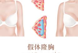 Aesthetic Plast Surg :隆胸患者植入物相关感染的治疗方案选择