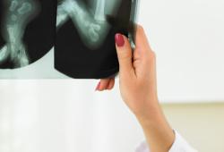 如何预测Danis-Weber B型踝关节骨折下胫腓联合损伤?