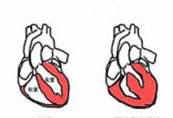 JAHA:感染性心内膜炎患者心脏瓣膜置换术使用和结局的性别差异