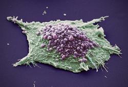J Immunother Cancer: 免疫检查点抑制剂在伴有牛皮癣患者的疗效和安全性