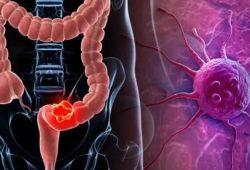 JGH:静脉注射甲泼尼龙与氢化可的松治疗急性炎症性肠病的效果比较