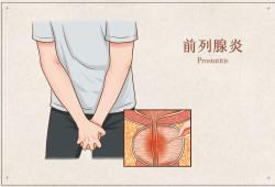 中医疗法可提高 Ⅲ型前列腺炎的疗效
