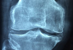 J PHYSIOTHER:短期冷冻疗法对减少膝骨关节炎患者的疼痛效果有限