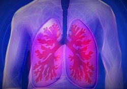 "JAMA Netw Open:库欣综合征相关肺<font color=""red"">神经</font>内分泌<font color=""red"">肿瘤</font>的外科治疗结局特征"