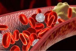 Gastric Cancer:绝经后妇女胆固醇水平与胃癌风险呈负相关
