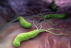 AP&T:年轻人根除幽门螺杆菌后上消化道出血的风险仍然比健康人群高