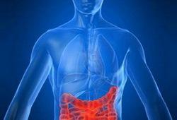 JCC:回肠造口术排出的粪便钙卫蛋白含量可以很好地预测克罗恩病患者的小肠炎症程度