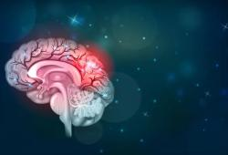 EBioMedicine:抗癌药阿西替尼成为阿尔兹海默症新希望