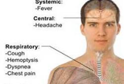 Clin Exp Allergy:过敏反应可能参与了严重COVID-19