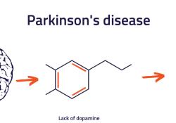 帕金森药物MLR-1019已开始量产,用于IIa期临床试验