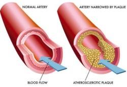 JACC:成年人糖尿病合并心肌病的流行率和预后影响因素