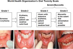 Avasopasem治疗放疗诱导的严重口腔粘膜炎,III期ROMAN试验未达到主要终点