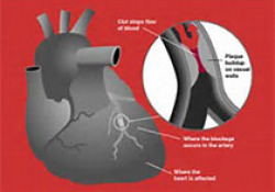 "Eur Heart J:接受<font color=""red"">PCI</font>的高出血风险患者替格瑞洛单药治疗效果分析"