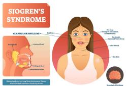 Front Med:中药配方治疗原发性干燥综合征的随机对照临床试验研究