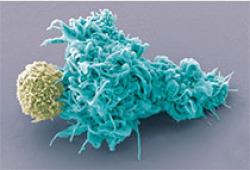 "Science Signaling:体外化疗""打残""癌细胞,结合免疫疗法消灭肿瘤,无复发"