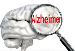 EBCAM:基于网络药理学的黄芪四君子汤治疗阿尔茨海默病机制研究