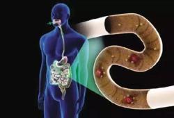 IBD:皮肤病对于炎症性肠病患者最终疾病诊断的预测价值
