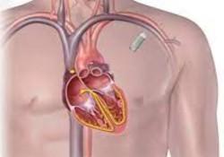 """Lancet:房颤引起中风?别担心,小小植入式""""纽扣""""能准确检测房颤、预防中风!"""