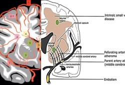Brain:中风、疲劳、冷漠、痴呆……这些脑小血管病症状都与炎症有关!