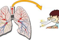 CHEST:支气管扩张加重期间和之后的心血管事件和长期死亡率的关系