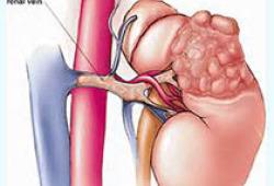 The Oncologist:PPIs的联合使用对Cabozantinib(卡博替尼)治疗转移性肾细胞癌(mRCC)的影响