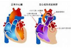JAHA:隐源性卒中患者动脉粥样硬化栓塞患病率的区别