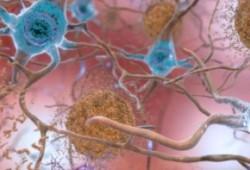 Brain:tau蛋白早期阶段及其与大脑功能连接、萎缩和记忆的关系
