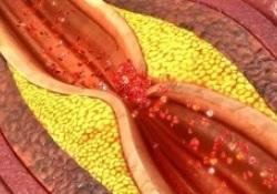 Cardiovasc Diabetol:有DM的中度冠脉狭窄患者的预后比无DM的重度冠脉狭窄患者的预后更差!