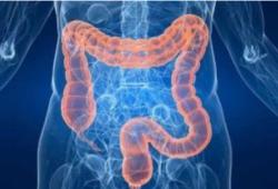 Br J Cancer:丹麦国家膳食指南与结直肠癌发病风险的相关性研究