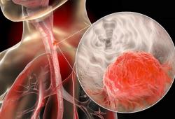 Nat Genet:食管鳞状细胞癌的突变特征研究