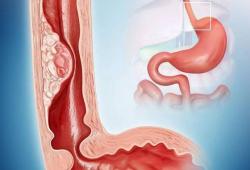 Br J Cancer:人群队列研究揭示更年期激素治疗可降低食管腺癌患病风险