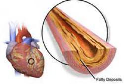 NEJM:高出血风险患者PCI后双重抗血小板治疗
