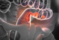 Dig Dis Sci: 早期结肠镜检查不会增加下消化道出血患者30 天内的再入院率