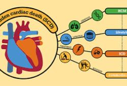 JACC:心肌纤维化预测冠状动脉疾病患者猝死风险