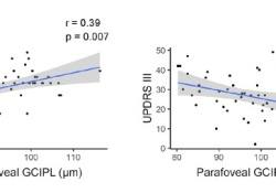 "Annals of Neurology : <font color=""red"">视网膜</font>厚度可预测帕金森患者的认知功能减退"